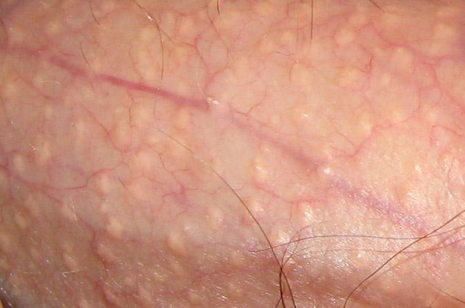 Fordyce-Flecken: Symptome & Therapie