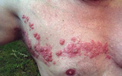 Gürtelrose: Ursachen, Online-Diagnose & Therapie durch Hautärzte