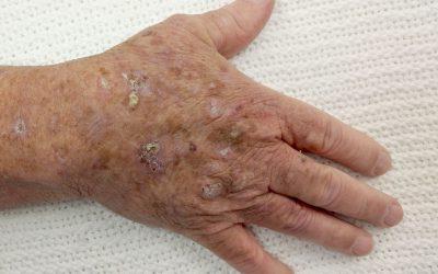 Aktinische Keratose – Aussehen, Online-Diagnose, Behandlung