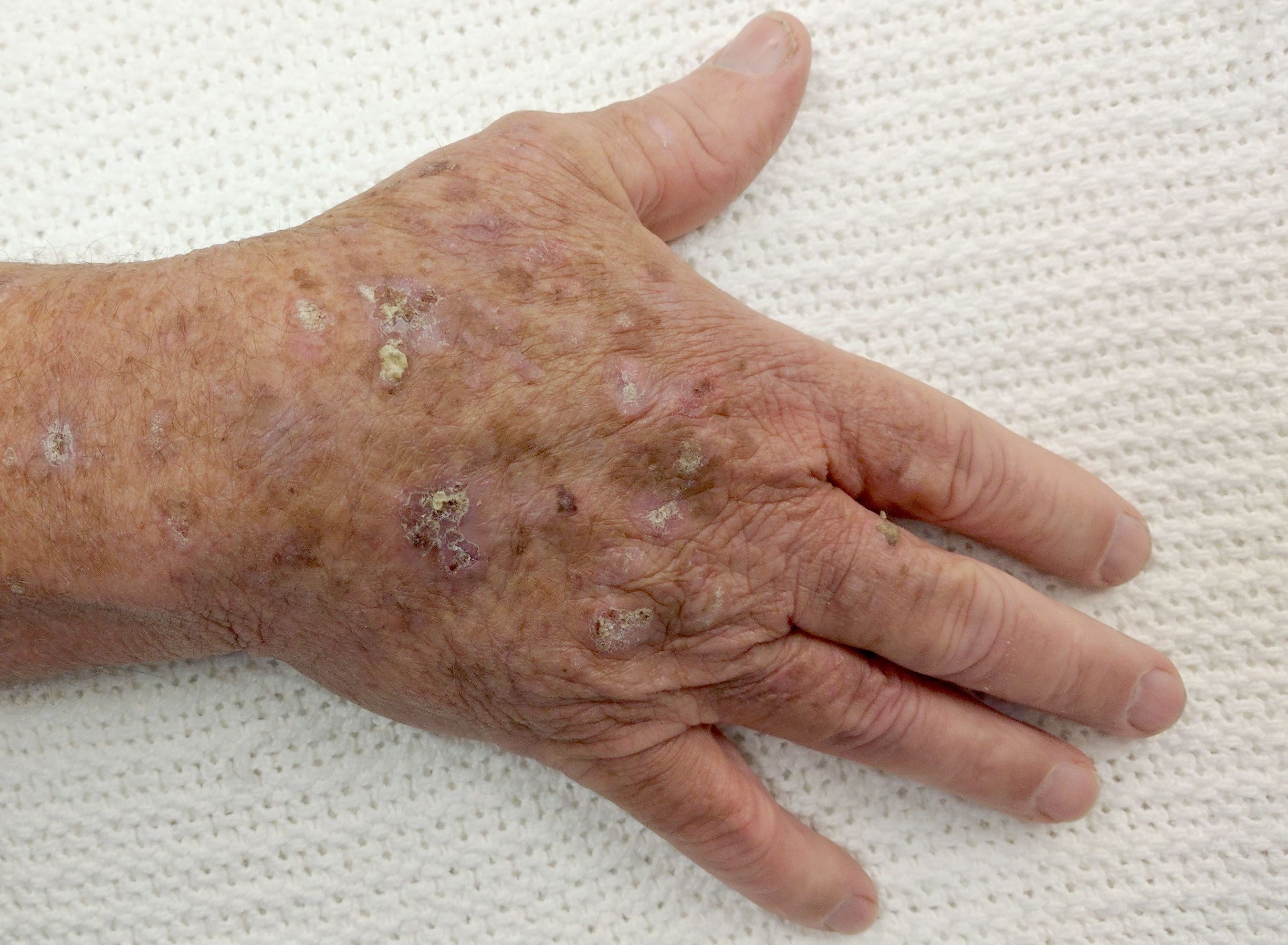 Aktinische Keratose Aussehen Online Diagnose Behandlung