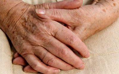Altersflecken – Aussehen, Ursachen und Entfernung