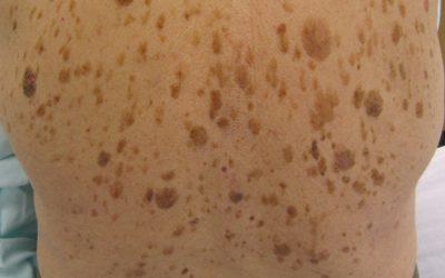 Alterswarzen (seborrhoische Keratose) – Online-Diagnose & Entfernung