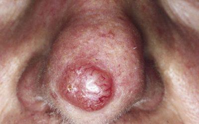 Basaliom (weißer Hautkrebs) – Online-Diagnose von Hautfachärzten