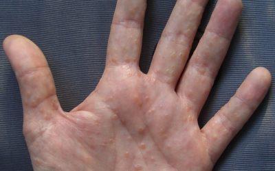 Dyshidrotisches Handekzem – Symptome und Behandlung