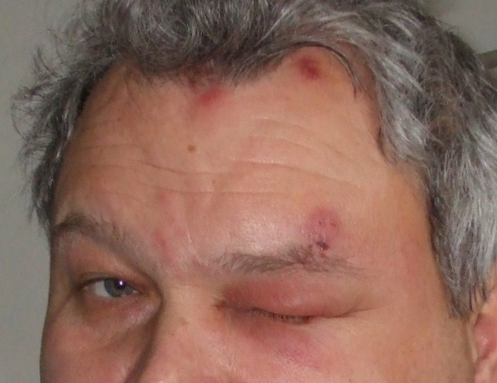 Augenbeteiligung bei Herpes Zoster Infektion