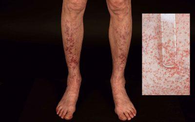 Leukozytoklastische Vaskulitis – Symptome und Therapie