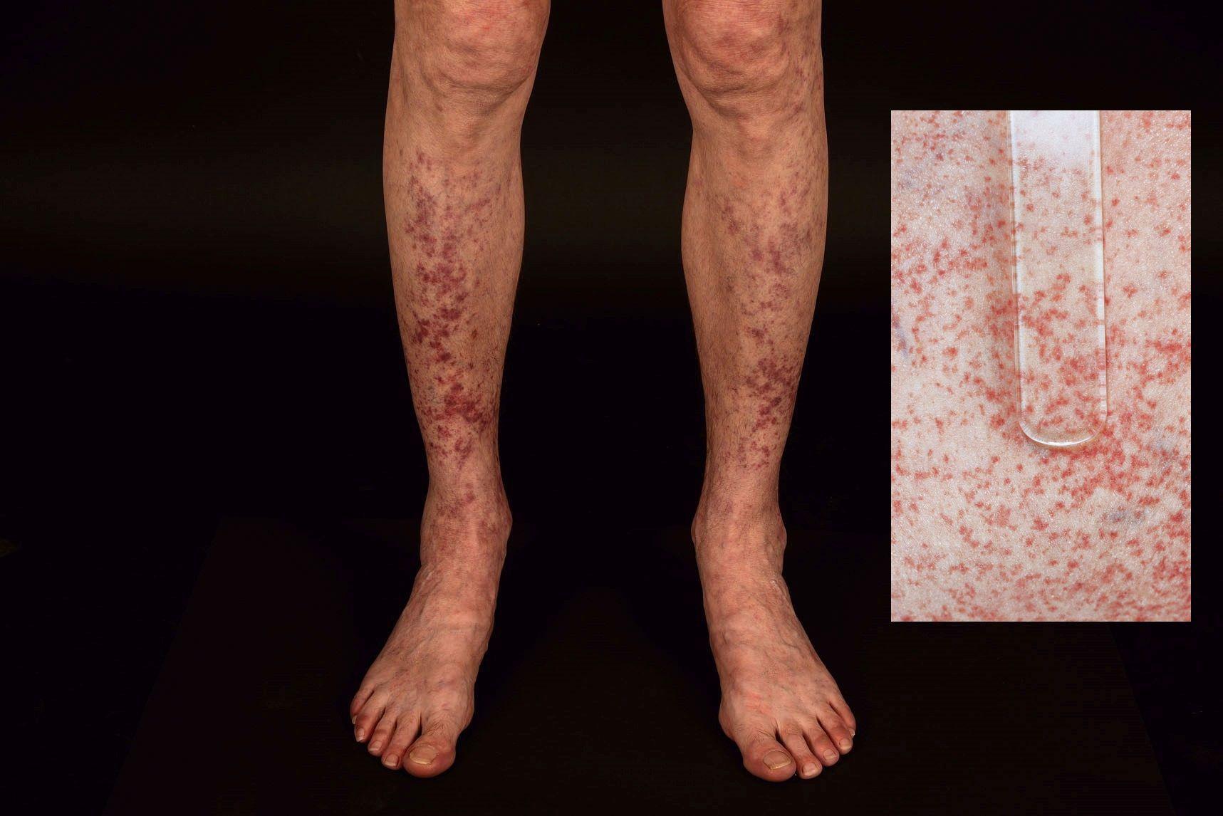 Einblutungen Unter Der Haut Forum