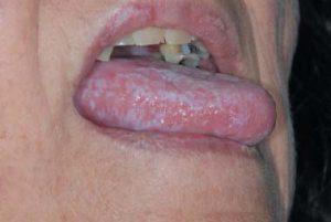 Lichen ruber planus an der Lippe und an der Zunge