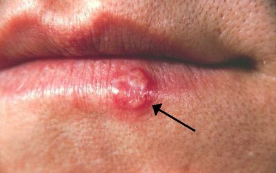 Lippenherpes (Herpes labialis): Ursachen, Symptome & Therapie
