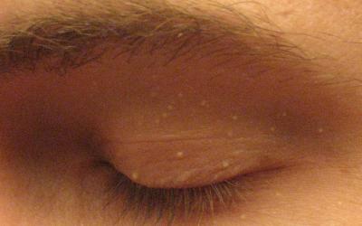 Milien: Was tun bei Hautgries?