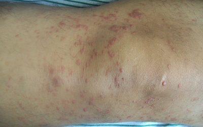 Mycosis fungoides – Ursachen, Symptome und Therapie