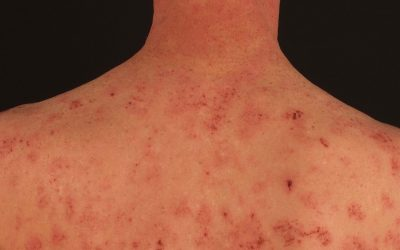 Nummuläre Dermatitis – Ursachen, Symptome und Therapie
