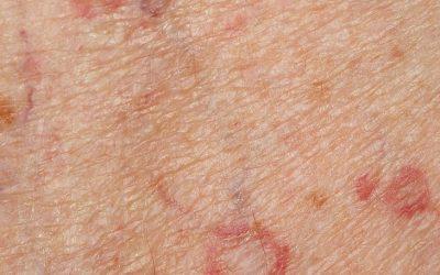 Porokeratose (Porokeratosis) – Symptome, Ursachen und Behandlung