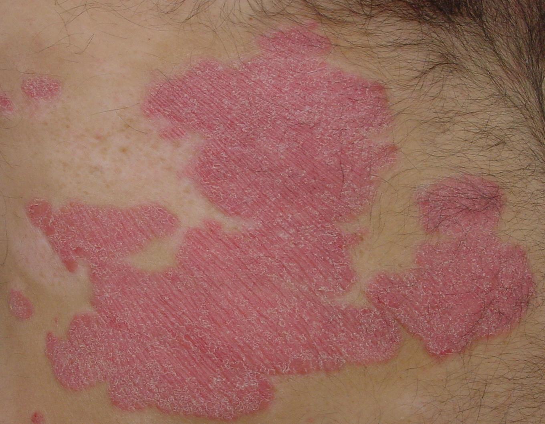Intimbereich schuppenflechte Psoriasis: Läsionen