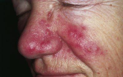 Rosazea – Ursachen, Online-Diagnose & Behandlung von Hautärzten