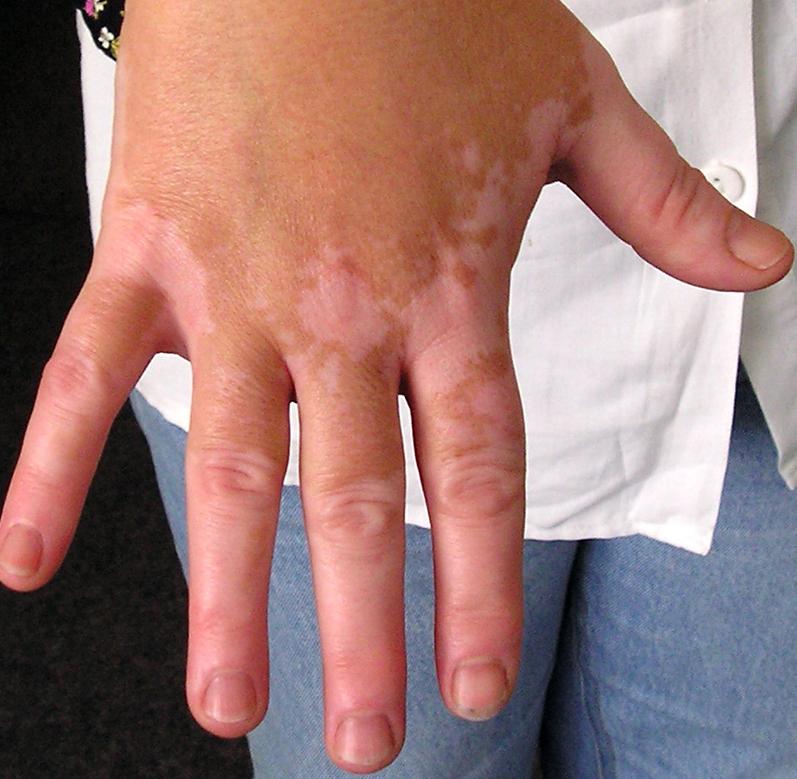 Vitiligo (Weißfleckenkrankheit) - Ursachen, Symptome ...