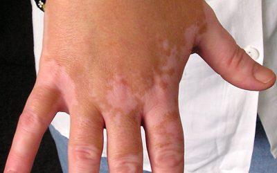 Vitiligo (Weißfleckenkrankheit) – Ursachen, Symptome, Verlauf & Therapie