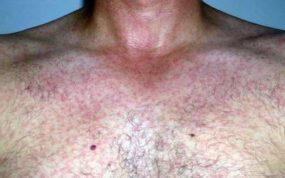 Hautausschlag beim Zika-Virus: Symptome und Behandlung
