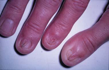 Lichen Ruber an den Fingernägeln