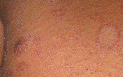 Röschenflechte (Pityriasis rosea) – Symptome und Therapie