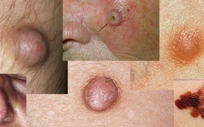 Hautkrebs erkennen: Bilder & Online-Diagnose durch Hautärzte
