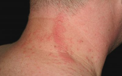 Raupendermatitis: Online-Diagnose & Therapie von Hautärzten