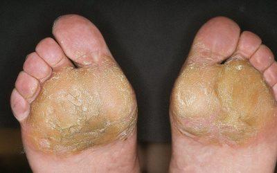 Fußekzem: Ursachen, Online-Diagnose und Therapie durch Hautärzte