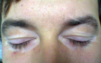 Weiße Flecken auf der Haut – Ursachen, Diagnose und Therapie
