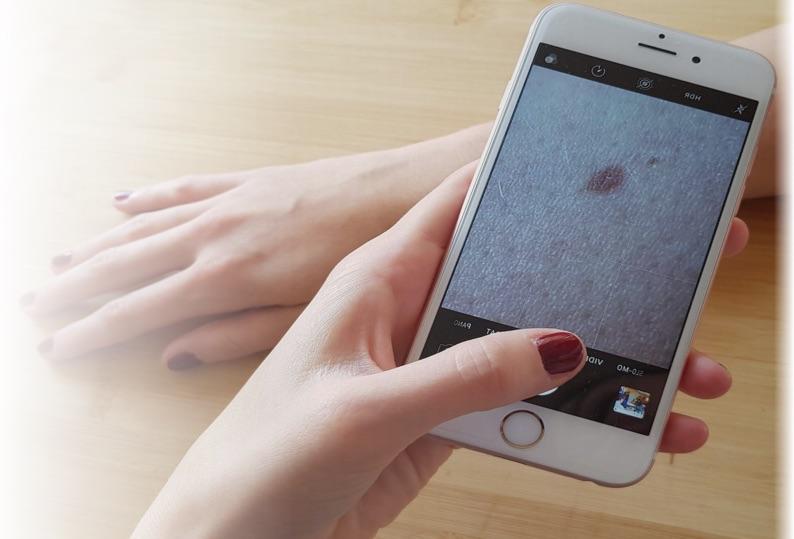"""Fotoaufnahme der Online Hautarzt App """"AppDoc"""" mit einem iPhone."""